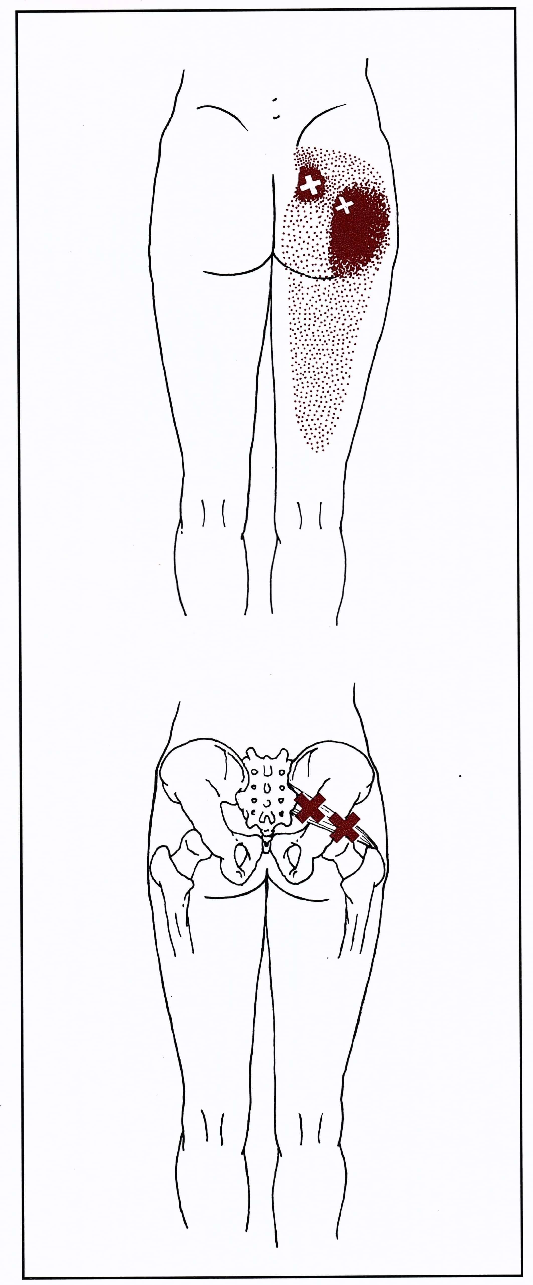 Trigger point del piriforme