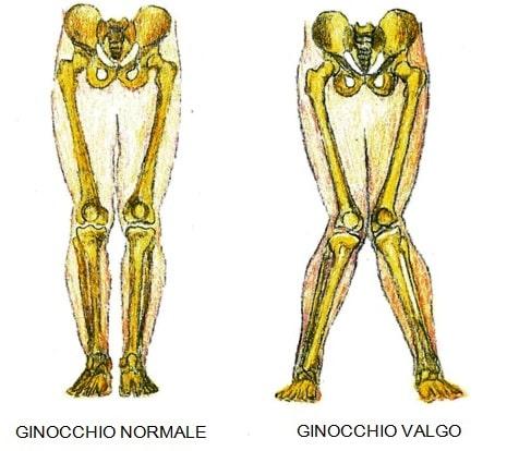 Ginocchio Valgo
