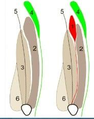 tensore-vasto-intermedio